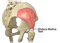 Arthroscopic Gluteus Medius Tendon Repair