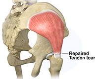 Endoscopic Hip Tendon Repair: Gluteus Medius & Hamstrings